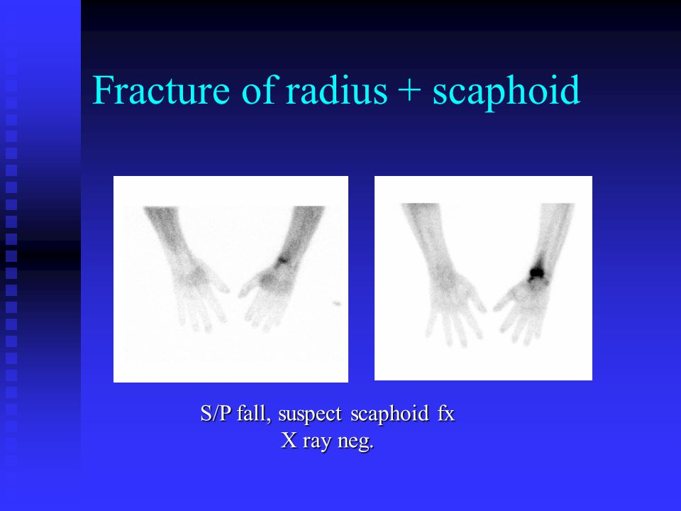 Fracture of radius + scaphoid S/P fall, suspect scaphoid fx X ray neg.