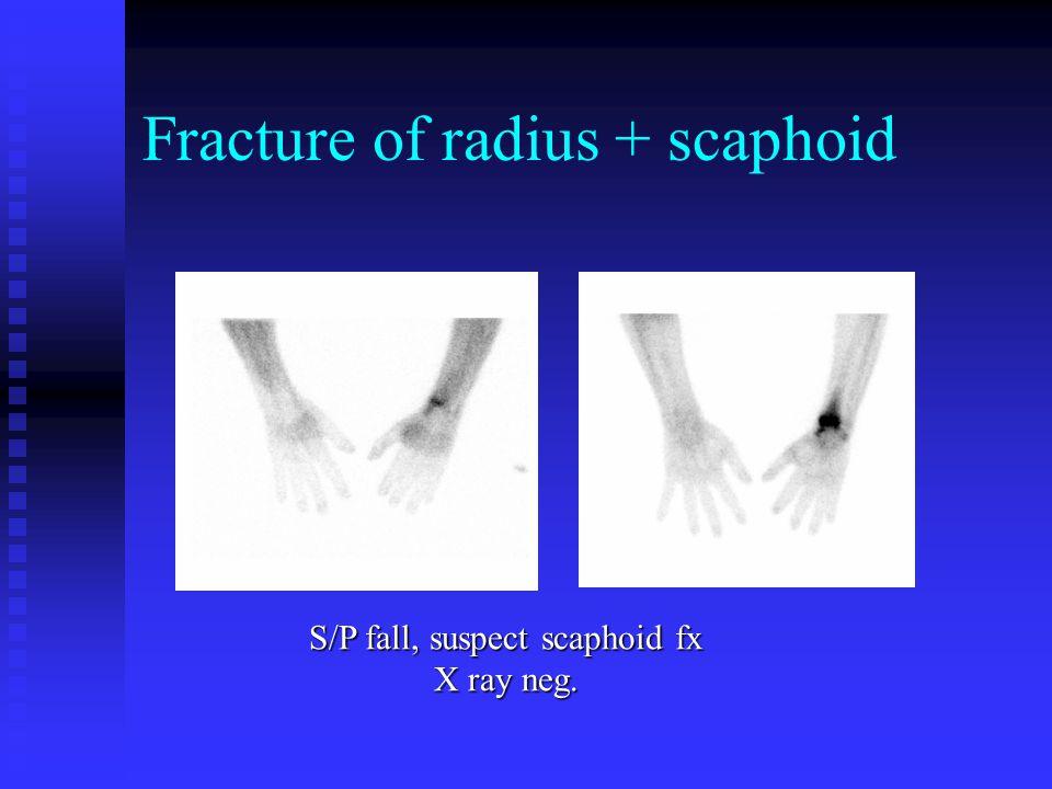 Scaphoid Fx 14 y/o M fell 6 wks ago, X ray negative