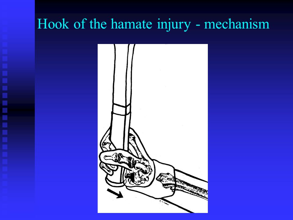 Hook of the hamate injury - mechanism