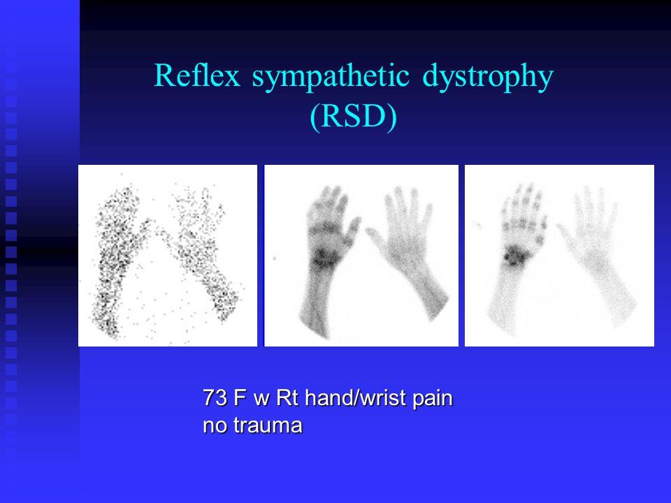 73 F w Rt hand/wrist pain no trauma Reflex sympathetic dystrophy (RSD)