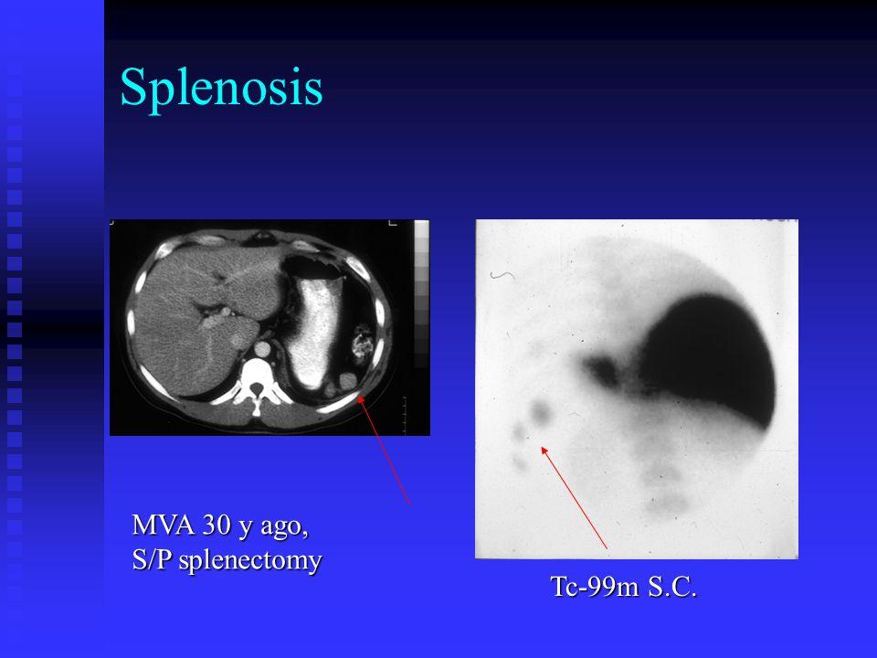 Pleuroperitoneal leak Pt. on peritoneal dialysis Rt LAT ANT