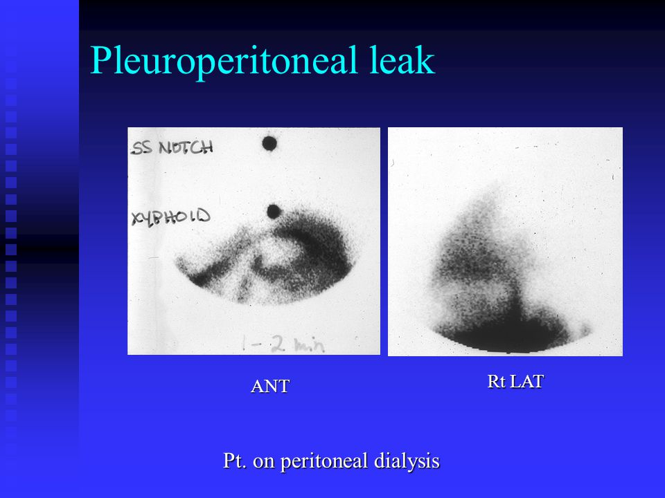Pleuroperitoneal leak Pt. on peritoneal dialysis Rt LAT ANT