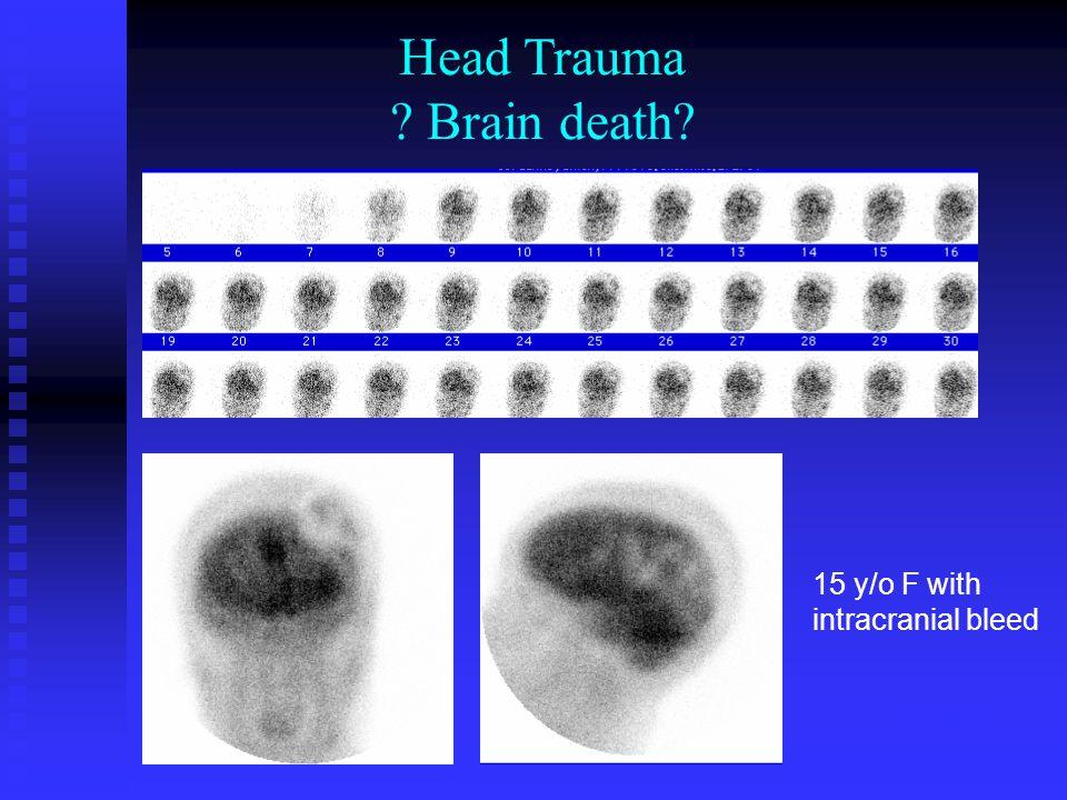 1717870 Head Trauma Brain death 15 y/o F with intracranial bleed