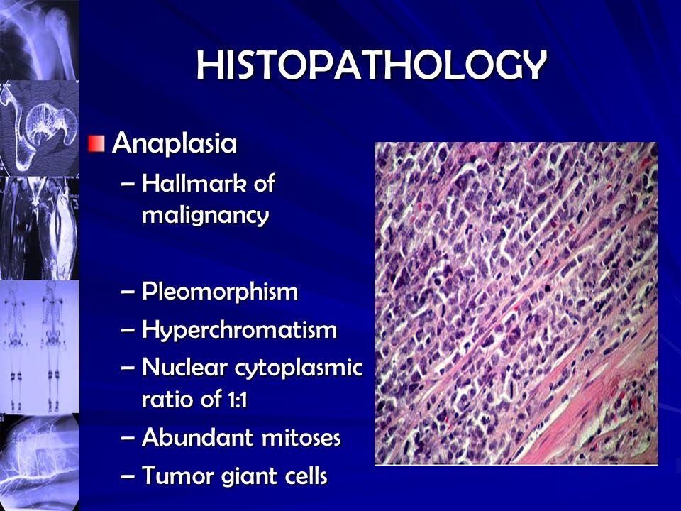 HISTOPATHOLOGY Anaplasia –Hallmark of malignancy –Pleomorphism –Hyperchromatism –Nuclear cytoplasmic ratio of 1:1 –Abundant mitoses –Tumor giant cells