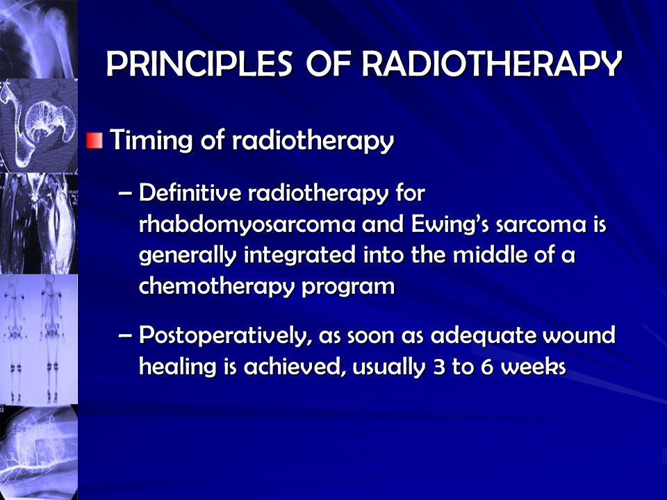 PRINCIPLES OF RADIOTHERAPY Timing of radiotherapy –Definitive radiotherapy for rhabdomyosarcoma and Ewing's sarcoma is generally integrated into the m
