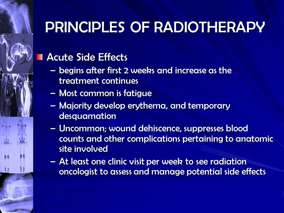 PRINCIPLES OF RADIOTHERAPY Acute Side Effects –begins after first 2 weeks and increase as the treatment continues –Most common is fatigue –Majority de