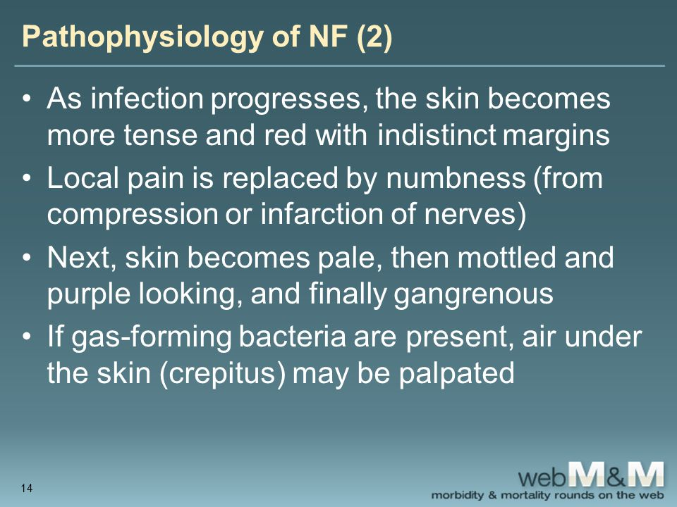 Pathophysiology of NF (2) As infection progresses, the skin becomes more tense and red with indistinct margins Local pain is replaced by numbness (fro