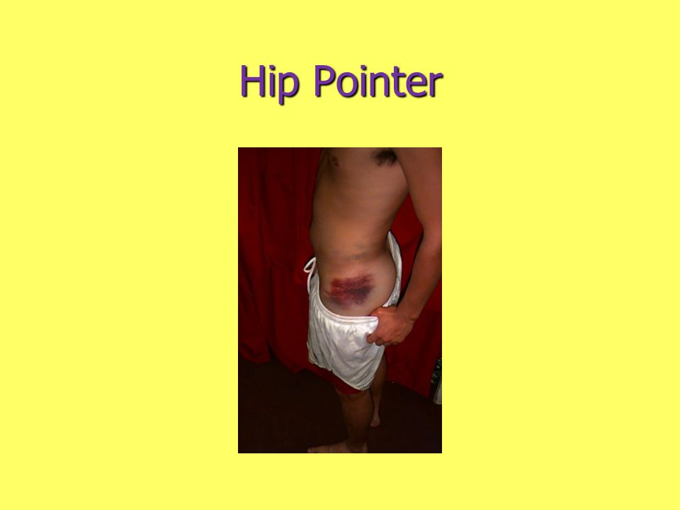 Hip Pointer