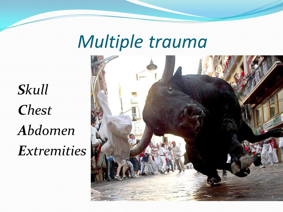 Multiple trauma Skull Chest Abdomen Extremities