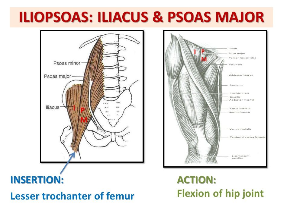 ILIOPSOAS: ILIACUS & PSOAS MAJOR INSERTION: Lesser trochanter of femurACTION: Flexion of hip joint PM I IPM