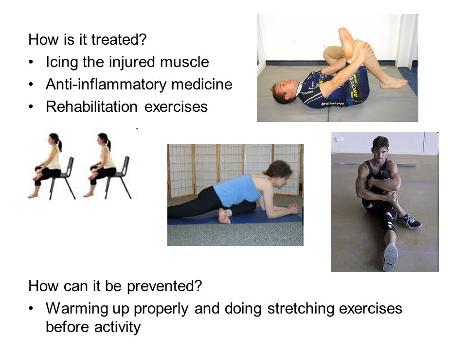 How is it treated? Icing the injured muscle Anti-inflammatory medicine Rehabilitation exercises How can it be prevented? Warming up properly and doing