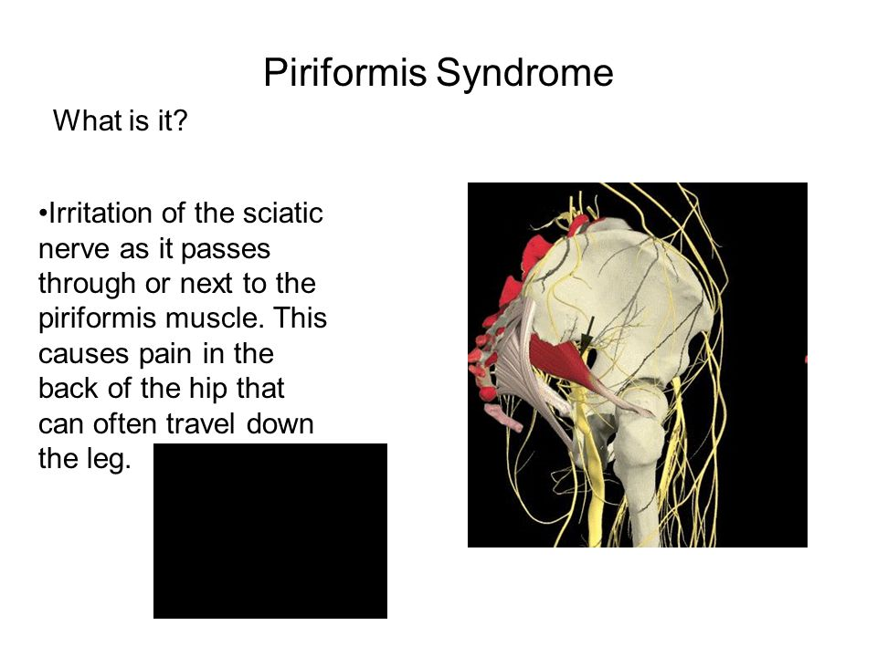 Piriformis Syndrome What is it? Irritation of the sciatic nerve as it passes through or next to the piriformis muscle. This causes pain in the back of