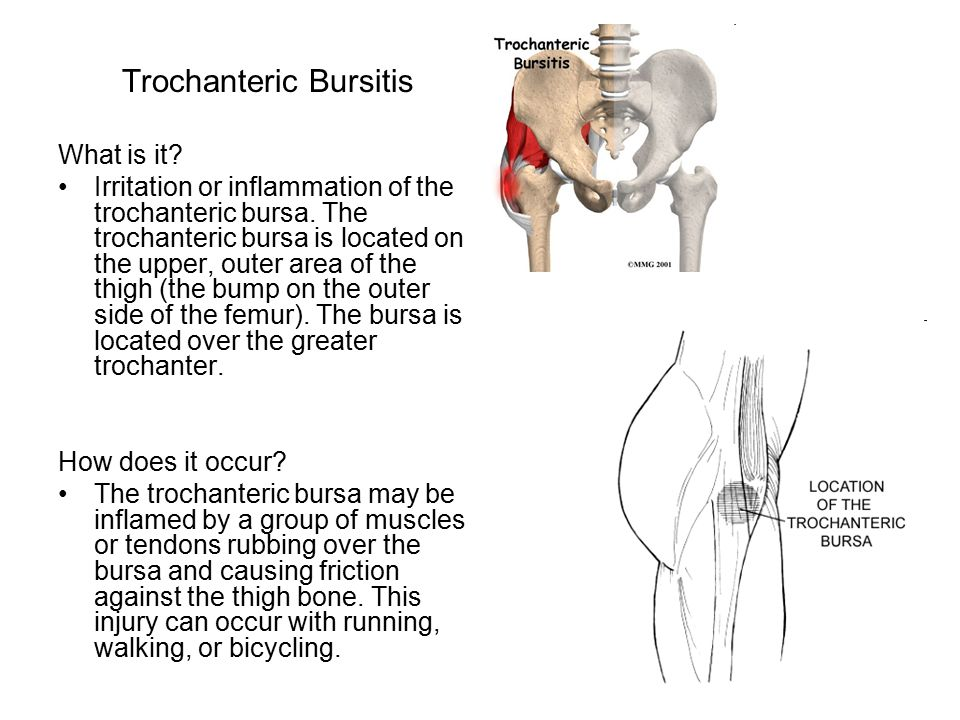 Trochanteric Bursitis What is it? Irritation or inflammation of the trochanteric bursa. The trochanteric bursa is located on the upper, outer area of