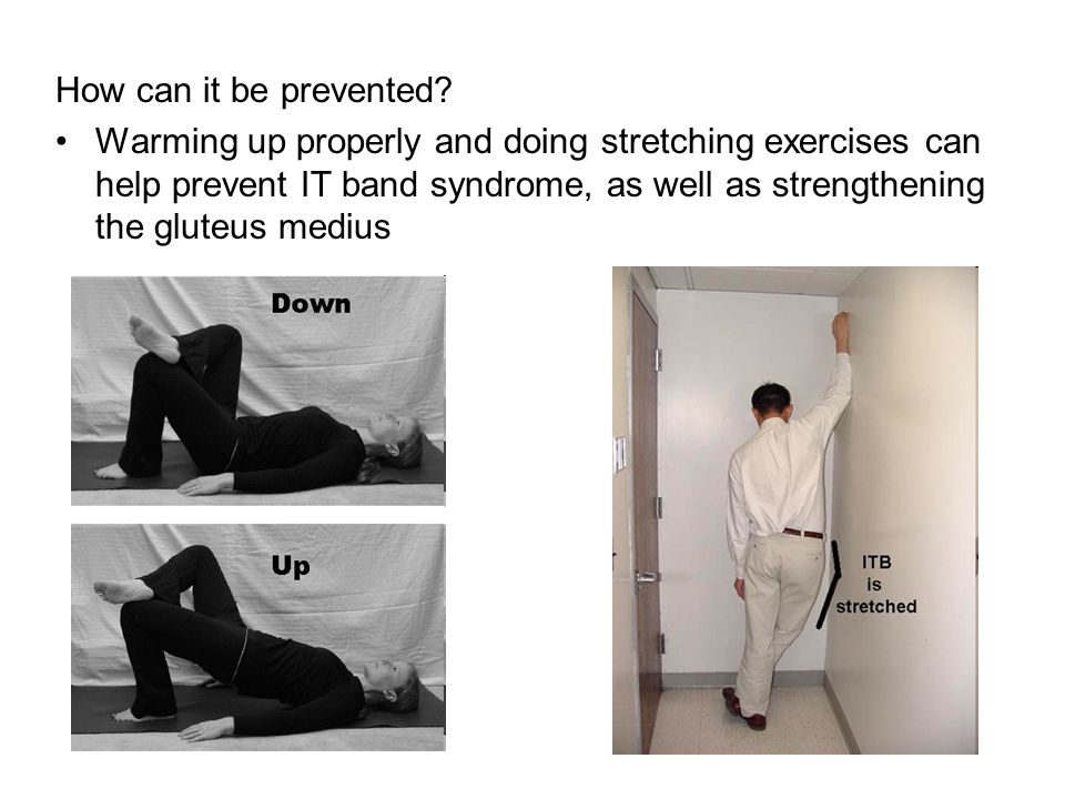 How can it be prevented? Warming up properly and doing stretching exercises can help prevent IT band syndrome, as well as strengthening the gluteus me