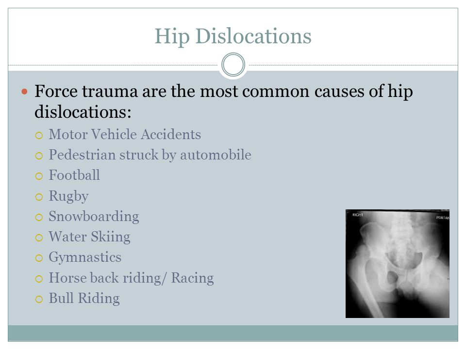 Hip Dislocations Force trauma are the most common causes of hip dislocations:  Motor Vehicle Accidents  Pedestrian struck by automobile  Football 