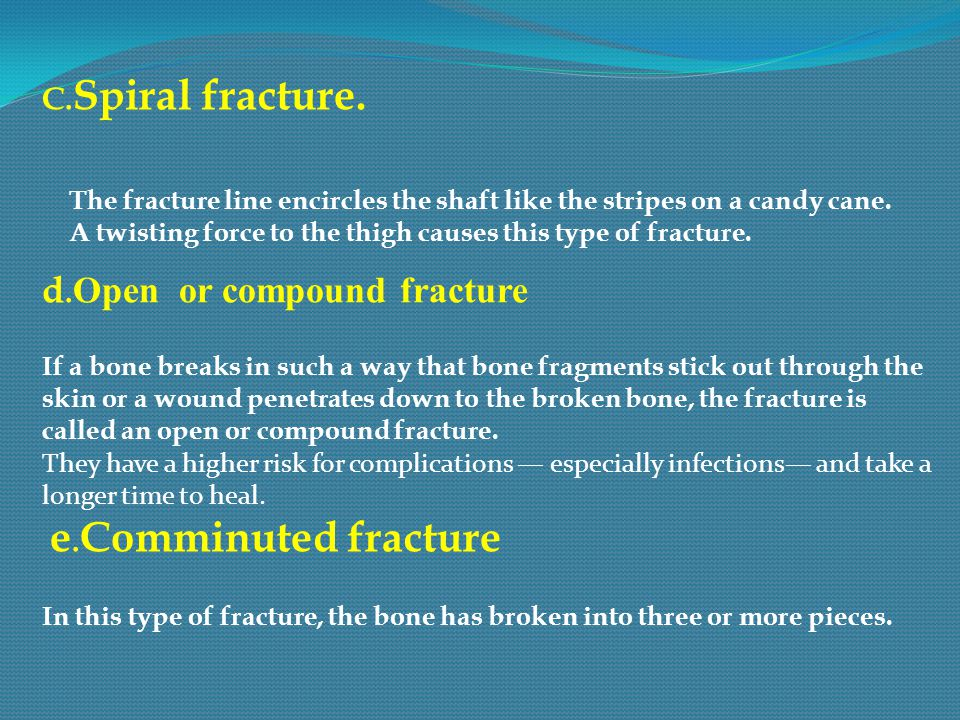 C. Spiral fracture. The fracture line encircles the shaft like the stripes on a candy cane. A twisting force to the thigh causes this type of fracture