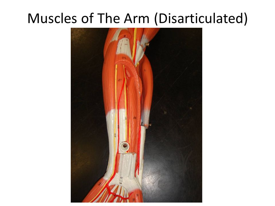 Muscles of The Arm (Disarticulated)