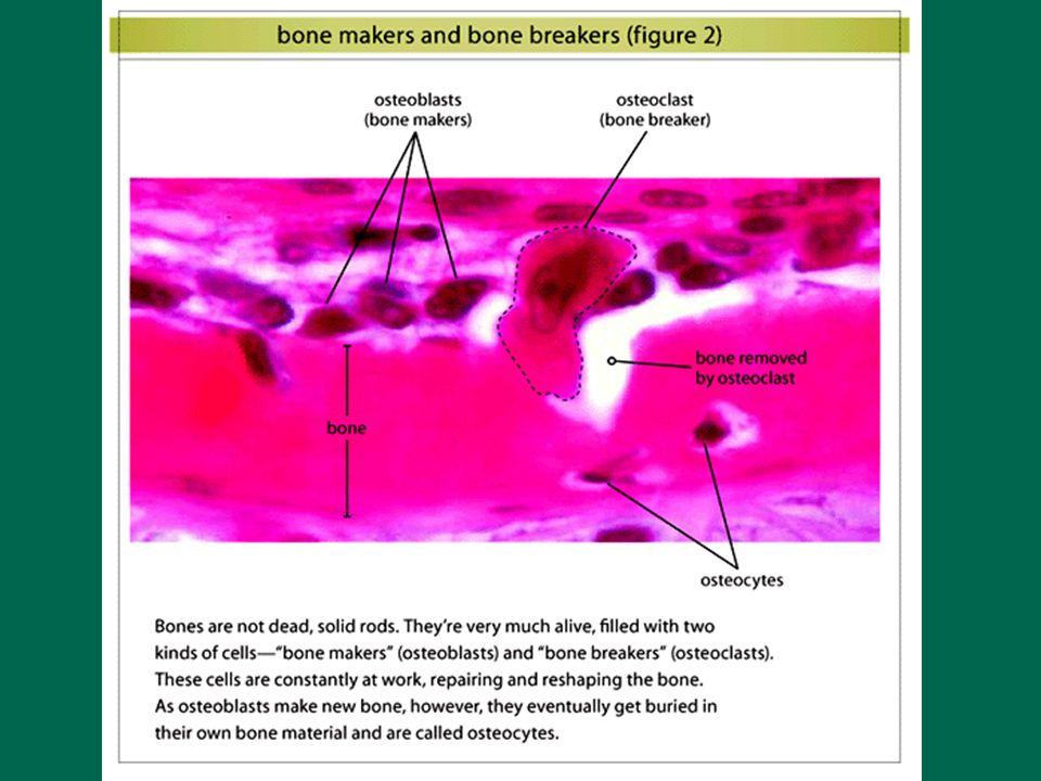 Wolf's Law Bone reacts to the stresses put on it. How Does Exercise Affect the Structure of Bone?