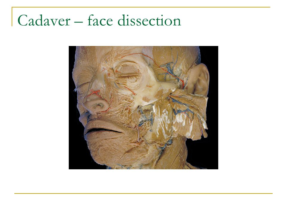 Cadaver – face dissection