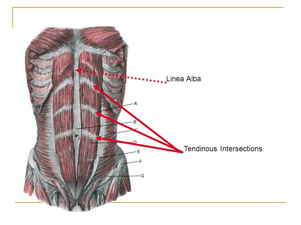 Tendinous Intersections Linea Alba