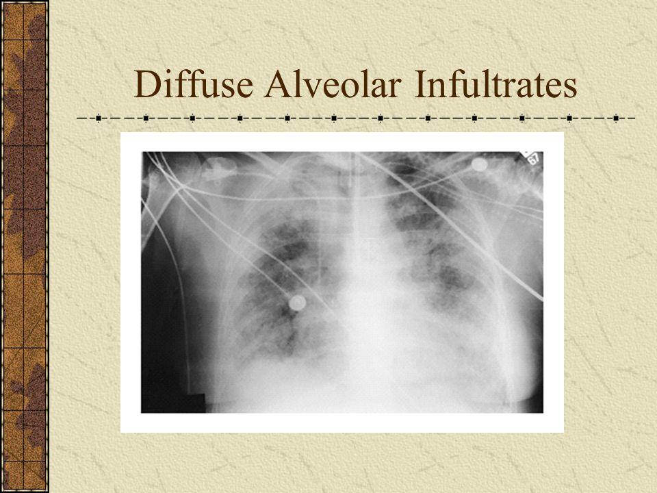 Diffuse Alveolar Infultrates