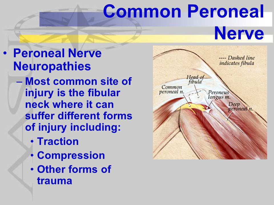 Common Peroneal Nerve Peroneal Nerve Neuropathies –Compression Lying on with pressure on fibular head (coma, anesthesia) Pressure wrapping around knee including: casts, AFOs, compression stockings, & pneumatic splints Recent loss of weight and loss of fat padding around the fibular head added risk