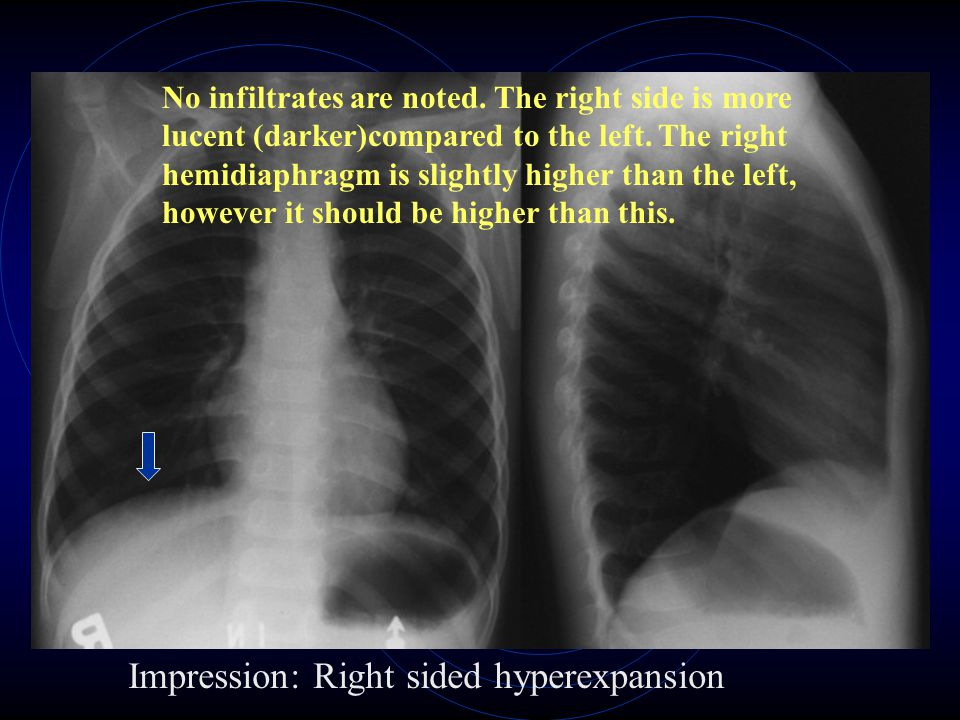No infiltrates are noted. The right side is more lucent (darker)compared to the left. The right hemidiaphragm is slightly higher than the left, howeve