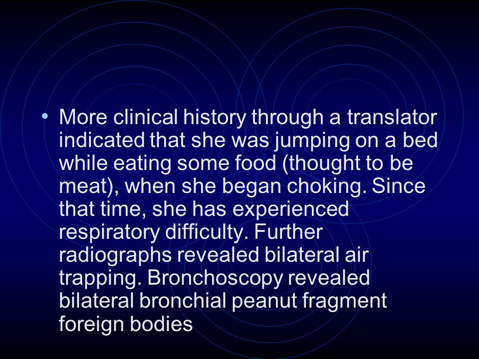 More clinical history through a translator indicated that she was jumping on a bed while eating some food (thought to be meat), when she began choking.