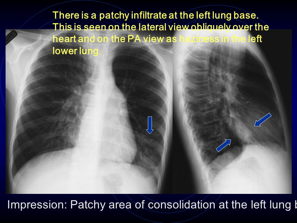 There is a patchy infiltrate at the left lung base. This is seen on the lateral view obliquely over the heart and on the PA view as haziness in the le