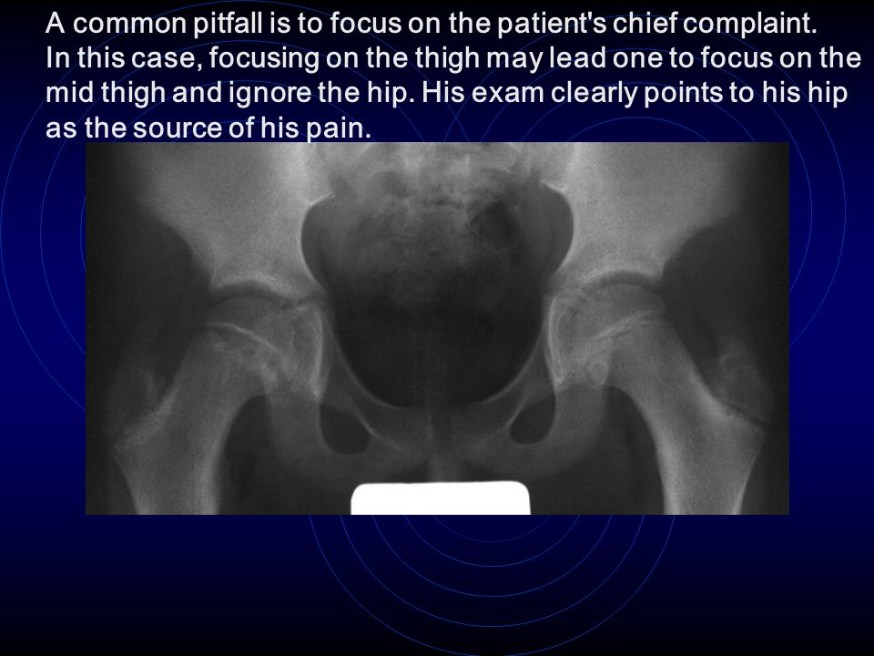 A common pitfall is to focus on the patient's chief complaint. In this case, focusing on the thigh may lead one to focus on the mid thigh and ignore t