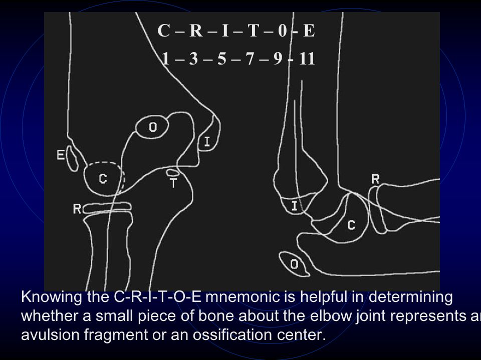 C – R – I – T – 0 - E 1 – 3 – 5 – 7 – 9 - 11 Knowing the C-R-I-T-O-E mnemonic is helpful in determining whether a small piece of bone about the elbow joint represents an avulsion fragment or an ossification center.
