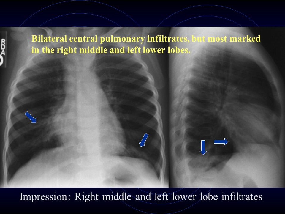 Bilateral central pulmonary infiltrates, but most marked in the right middle and left lower lobes. Impression: Right middle and left lower lobe infilt