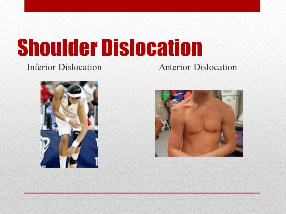 Shoulder Dislocation Inferior Dislocation Anterior Dislocation