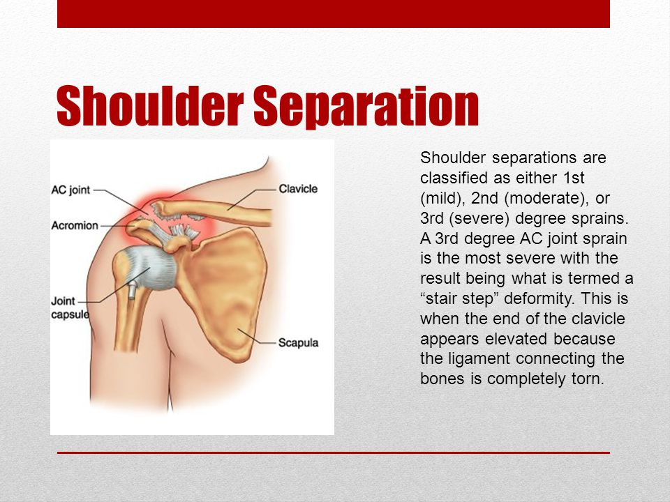 Shoulder Separation Shoulder separations are classified as either 1st (mild), 2nd (moderate), or 3rd (severe) degree sprains.