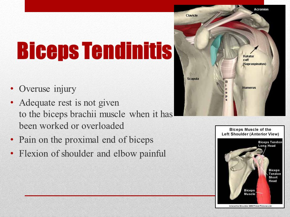 Biceps Tendinitis Overuse injury Adequate rest is not given to the biceps brachii muscle when it has been worked or overloaded Pain on the proximal end of biceps Flexion of shoulder and elbow painful
