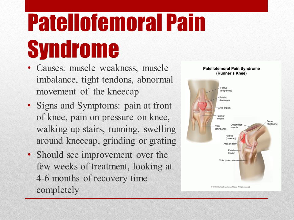 Patellofemoral Pain Syndrome Causes: muscle weakness, muscle imbalance, tight tendons, abnormal movement of the kneecap Signs and Symptoms: pain at front of knee, pain on pressure on knee, walking up stairs, running, swelling around kneecap, grinding or grating Should see improvement over the few weeks of treatment, looking at 4-6 months of recovery time completely