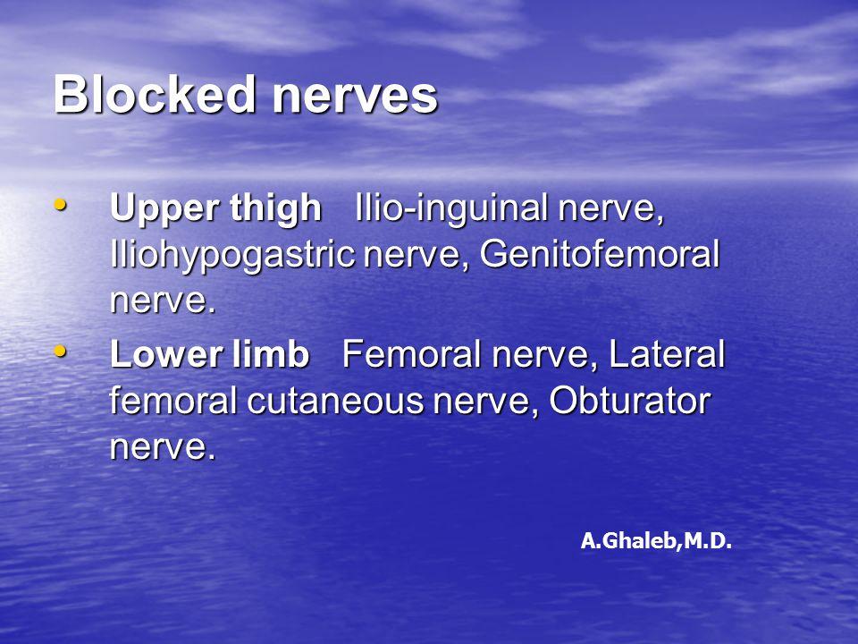 Blocked nerves Upper thigh Ilio-inguinal nerve, Iliohypogastric nerve, Genitofemoral nerve. Upper thigh Ilio-inguinal nerve, Iliohypogastric nerve, Ge