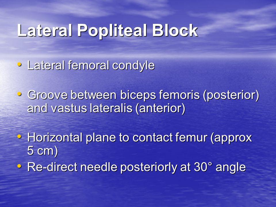 Lateral Popliteal Block Lateral femoral condyle Lateral femoral condyle Groove between biceps femoris (posterior) and vastus lateralis (anterior) Groo
