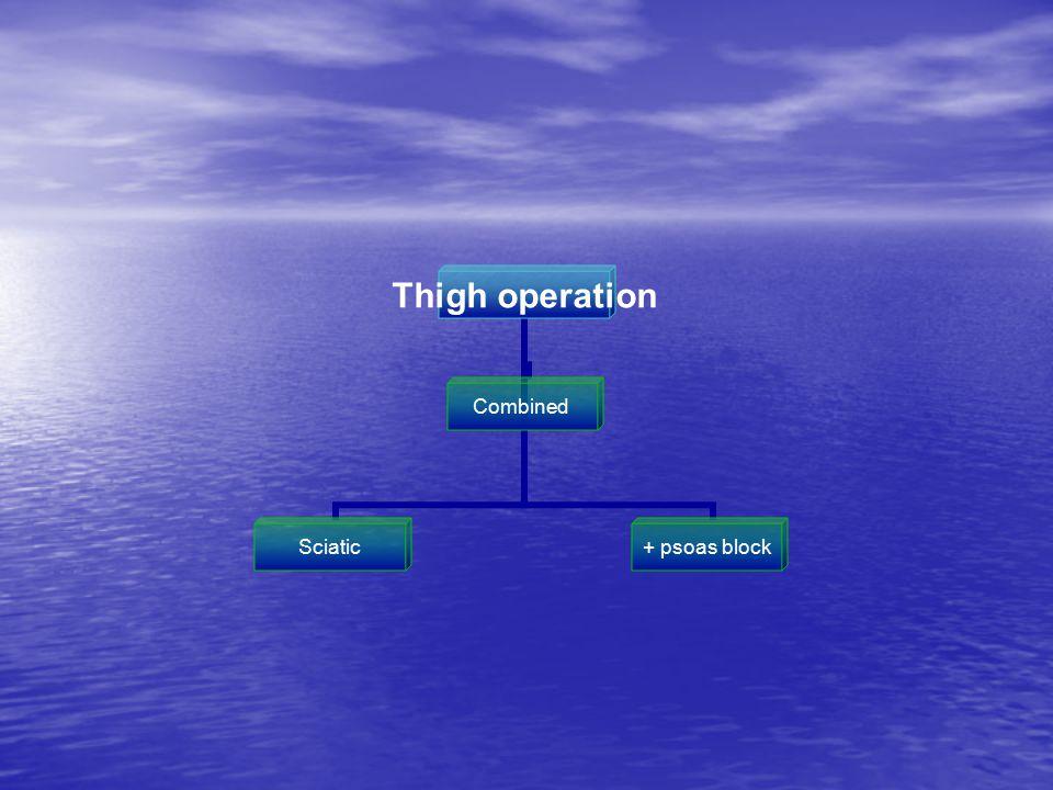 Thigh operation CombinedSciatic + psoas block