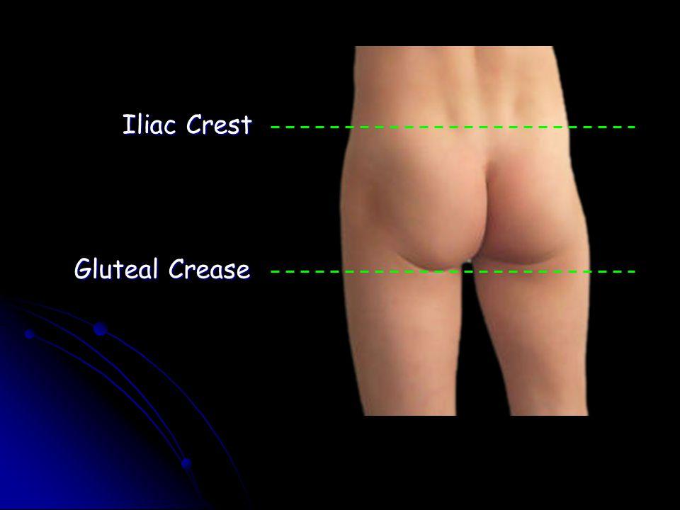 Iliac Crest Gluteal Crease