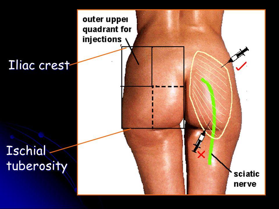 Ischial tuberosity Iliac crest