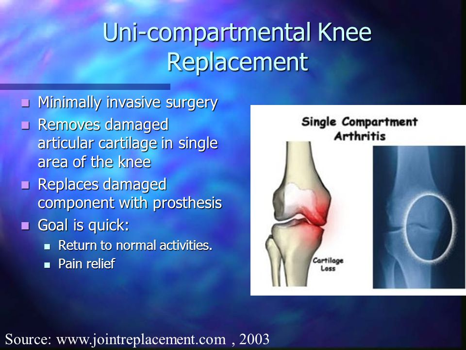 Uni-compartmental Knee Replacement Minimally invasive surgery Minimally invasive surgery Removes damaged articular cartilage in single area of the knee Removes damaged articular cartilage in single area of the knee Replaces damaged component with prosthesis Replaces damaged component with prosthesis Goal is quick: Goal is quick: Return to normal activities.
