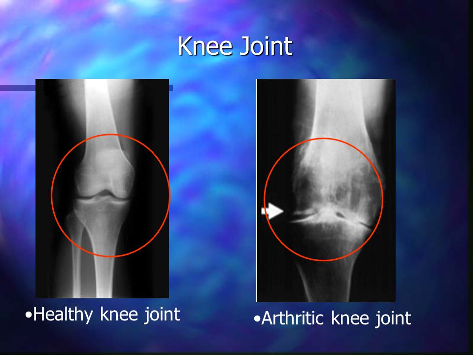 Knee Surgical Treatment Options Arthroscopy Arthroscopy Synovectomy Synovectomy Tibial osteotomy Tibial osteotomy Total knee replacement Total knee replacement Uni-compartmental replacement Uni-compartmental replacement Source: www.AllAboutArthritis.com, 2003www.AllAboutArthritis.com