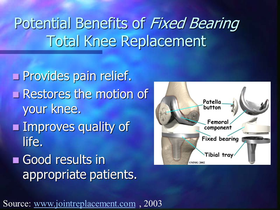 Potential Benefits of Fixed Bearing Total Knee Replacement Provides pain relief.