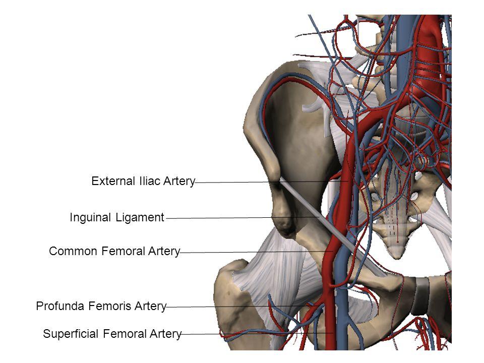 External Iliac Artery Common Femoral Artery Inguinal Ligament Profunda Femoris Artery Superficial Femoral Artery