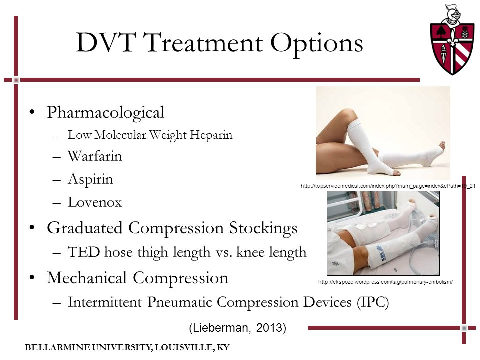 BELLARMINE UNIVERSITY, LOUISVILLE, KY DVT Treatment Options Pharmacological –Low Molecular Weight Heparin –Warfarin –Aspirin –Lovenox Graduated Compression Stockings –TED hose thigh length vs.