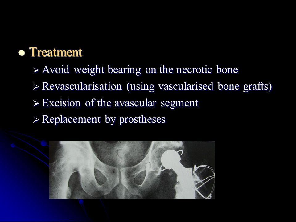 Treatment Treatment  Avoid weight bearing on the necrotic bone  Revascularisation (using vascularised bone grafts)  Excision of the avascular segme