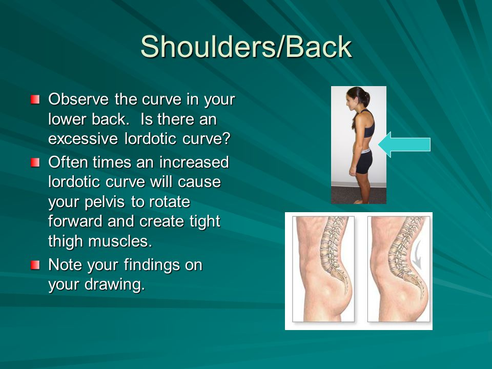 Shoulders/Back Observe the curve in your lower back. Is there an excessive lordotic curve? Often times an increased lordotic curve will cause your pel