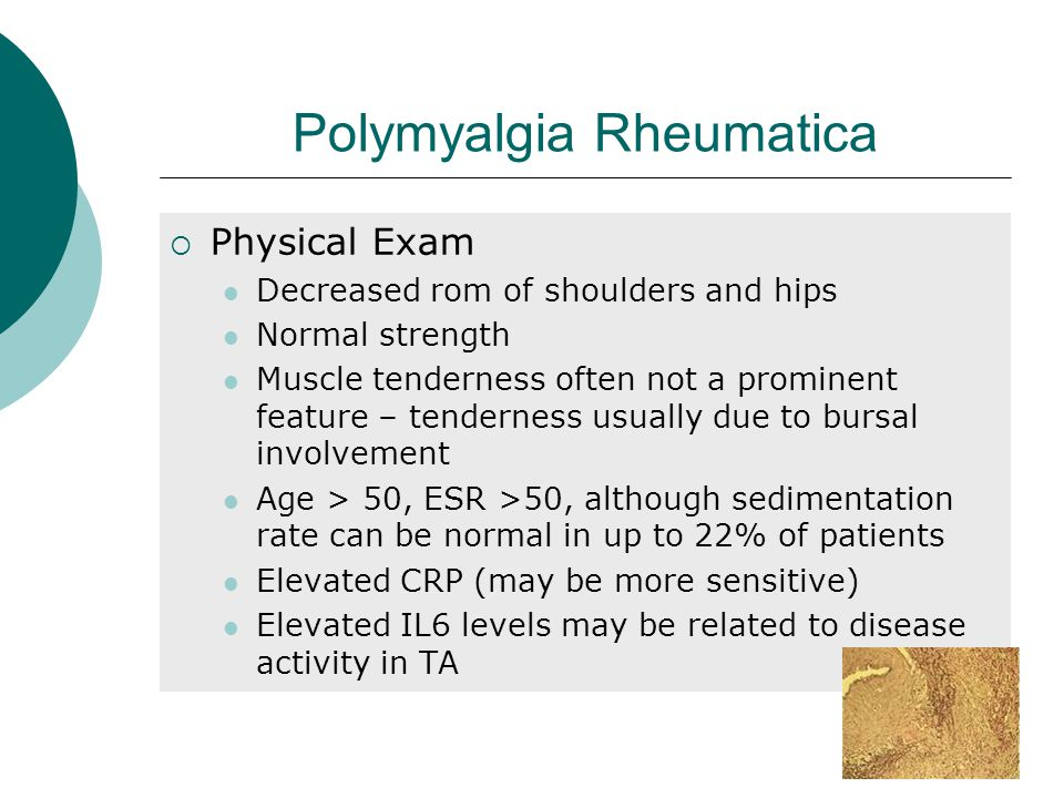 Polymyalgia Rheumatica  Physical Exam Decreased rom of shoulders and hips Normal strength Muscle tenderness often not a prominent feature – tenderness usually due to bursal involvement Age > 50, ESR >50, although sedimentation rate can be normal in up to 22% of patients Elevated CRP (may be more sensitive) Elevated IL6 levels may be related to disease activity in TA