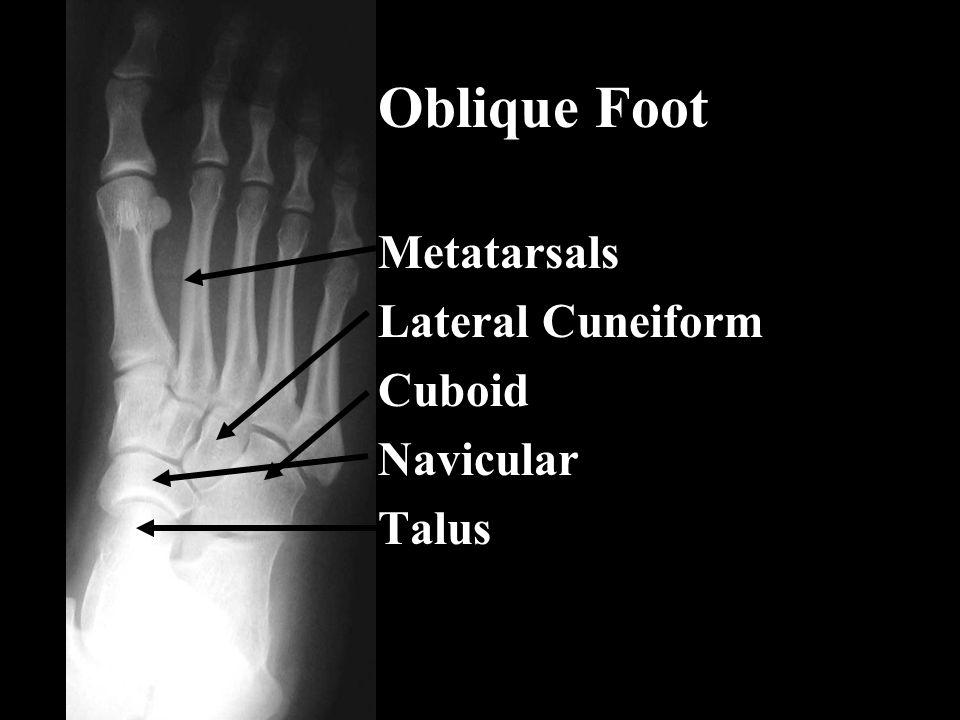 Oblique Foot Metatarsals Lateral Cuneiform Cuboid Navicular Talus